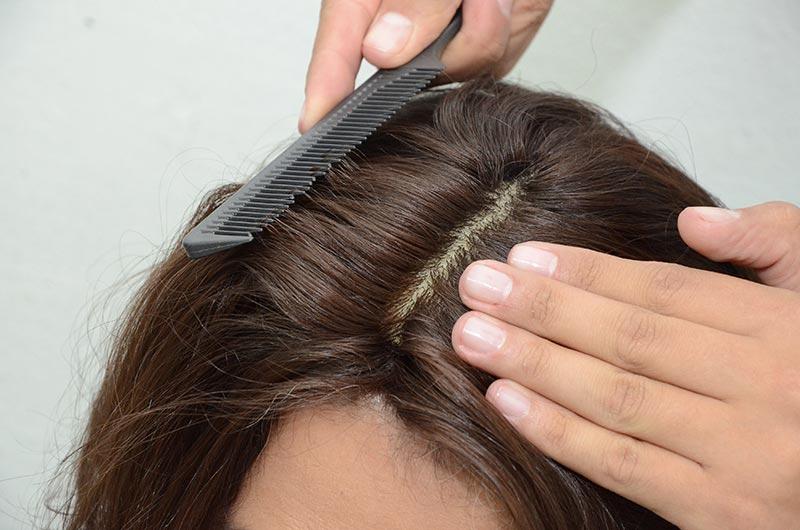 Prótese Capilar, Perucas, Laces e Mega Hair